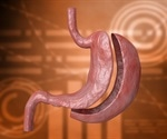 Gastric bypass more likely to require further treatment than gastric sleeve