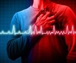 Expert genomics panel disputes certain genes linked to a dangerous heart condition