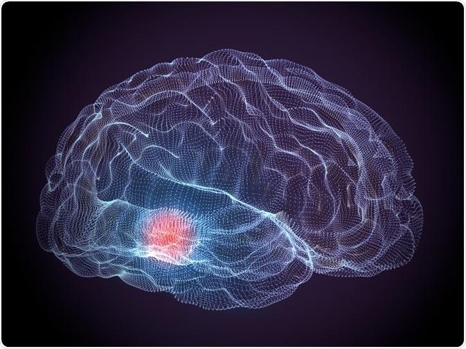Brain - parkinson
