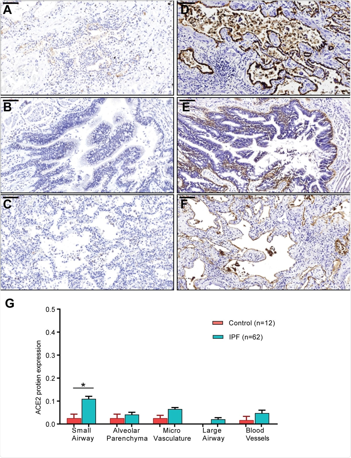 ACE2 and ITGB6 protein expression in IPF lung sections. (A-C) IPF lung sections stained for ACE2: (A) small airway, (B) large airway and (C) lung parenchyma. (D-F): IPF lung sections stained for αvβ6: (D) small airway, (E) large airway and (F) lung parenchyma. (G) semi-quantitative evaluation of ACE2 scoring among control and IPF sections (both the percentage of staining and staining intensity of ACE2 expression;0-Negative; 1-0–⩽10%; 2-11–⩽25%; 3- ⩽26%). Significant differences between IPF and control were calculated using Tukey HSD test, p-value < 0.05 *. Scale bar = 100μm.