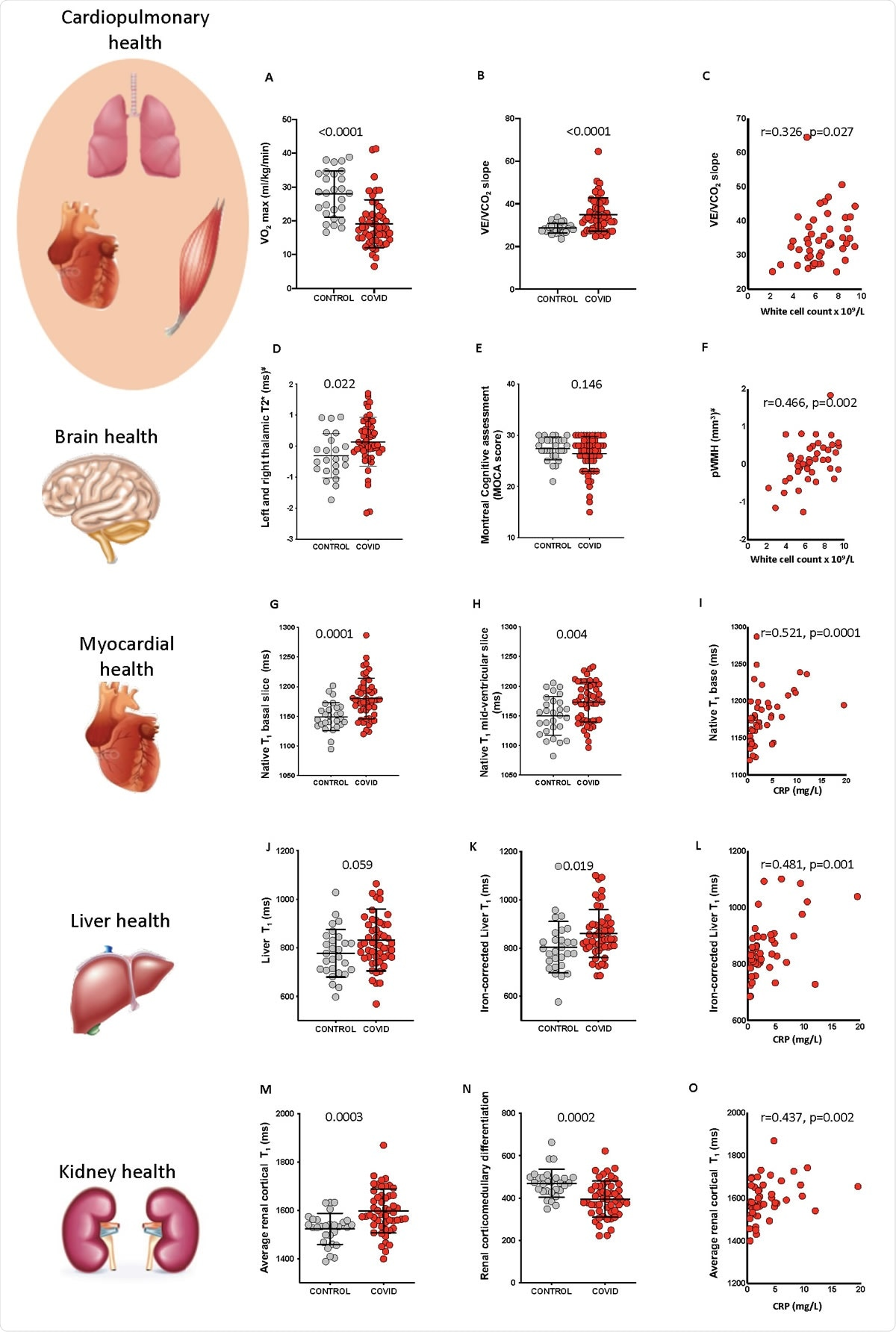 Systemic effects of COVID-19 and relationship with inflammatory response