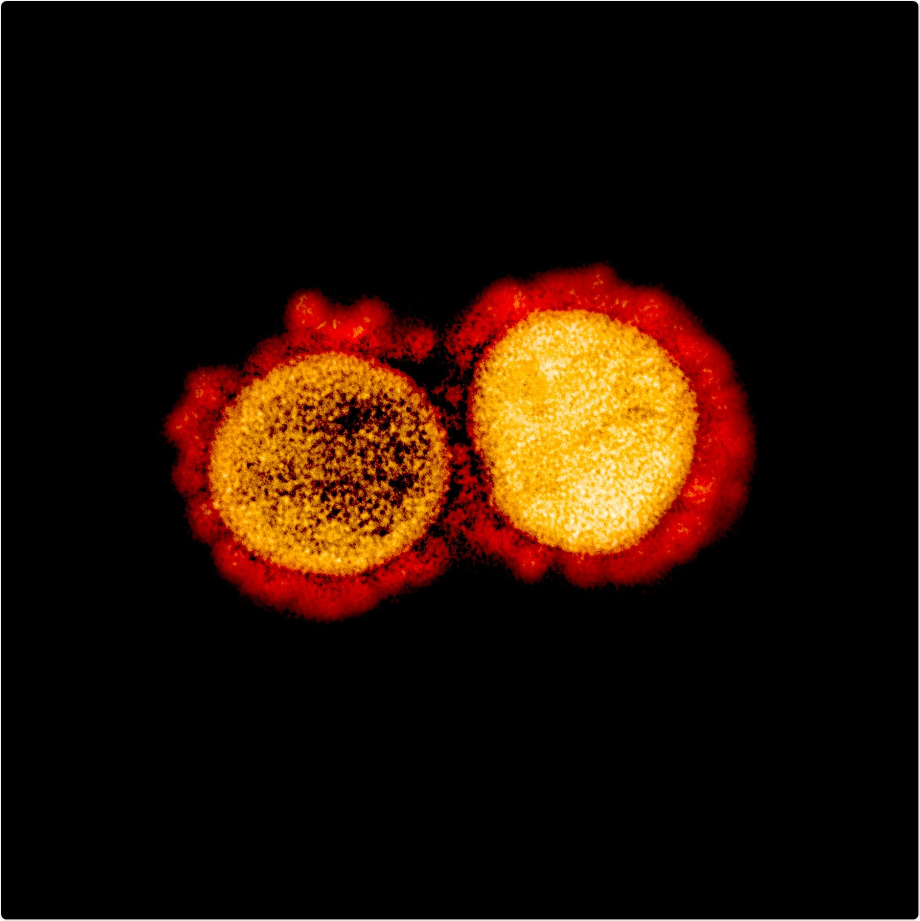 Transmission electron micrograph of SARS-CoV-2 virus particles, isolated from a patient. Image captured and color-enhanced at the NIAID Integrated Research Facility (IRF) in Fort Detrick, Maryland. Credit: NIAID
