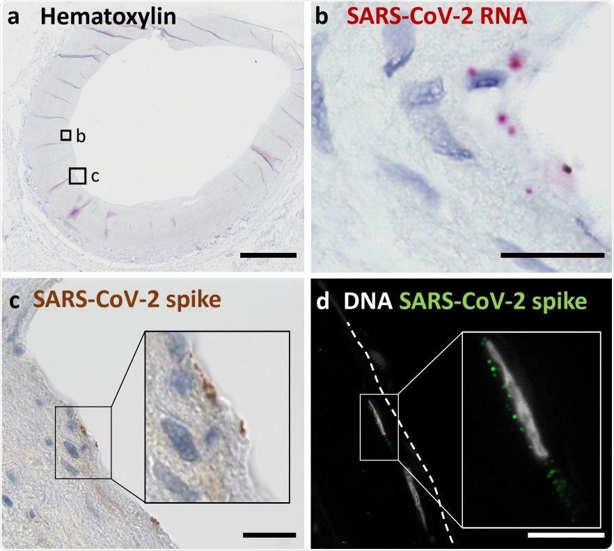 (a) La generalità mostra una sezione trasversale dei carotis di un A. counterstained con Hematoxylin e sottoposti all