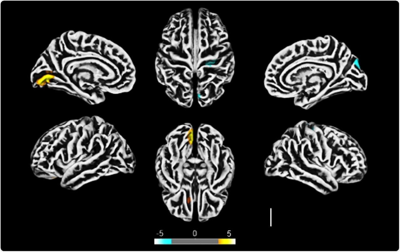 Altered cerebral cortical thickness is associated with neuropsychiatric symptoms in COVID-19 patients. a) Surface-based morphometry using high-resolution 3T MRI. Yellow represents areas of decreased cortical thickness: left lingual gyrus, calcarine sulcus (and cuneus), and olfactory sulcus (and rectus gyrus) . Blue represents areas of increased cortical thickness: central sulcus (precentral and postcentral gyrus) and superior occipital gyrus. Representative image of the analysis of 81 subjects tested positive for SARS-CoV-2 who had mild respiratory symptoms and did not require hospitalization or oxygen support compared to 145 healthy volunteers (without diagnosis of COVID-19) . The analysis was performed within a median interval of 54 days. b) Correlation between BAI performance and right orbital gyrus thickness. The data depicts Pearson's correlation coefficient . c) Correlation between TRAIL B performance and right gyrus rectus thickness. Data depict Pearson's correlation coefficient and region of interest in representative images.
