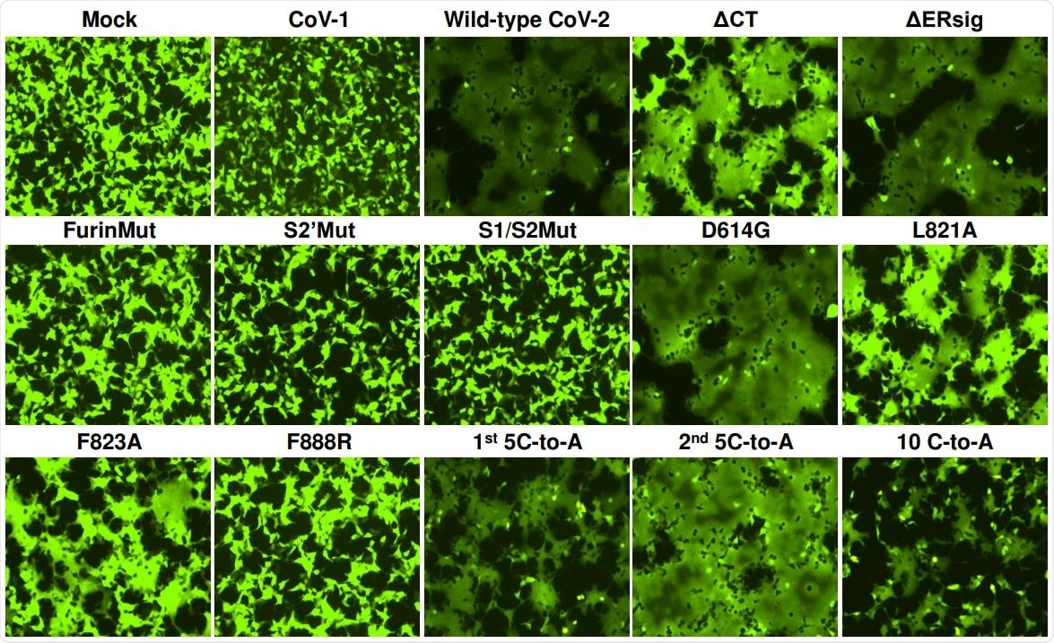 293T-ACE2 cells were transfected either with a plasmid expressing enhanced green fluorescent protein (eGFP) alone (Mock) or with the eGFP-expressing plasmid and a plasmid expressing SARS-CoV-1 S gp or wild-type or mutant SARS-CoV-2 S glycoproteins. After 24 hours, the cells were examined under a fluorescent microscope. The results shown are representative of those obtained in two independent experiments.