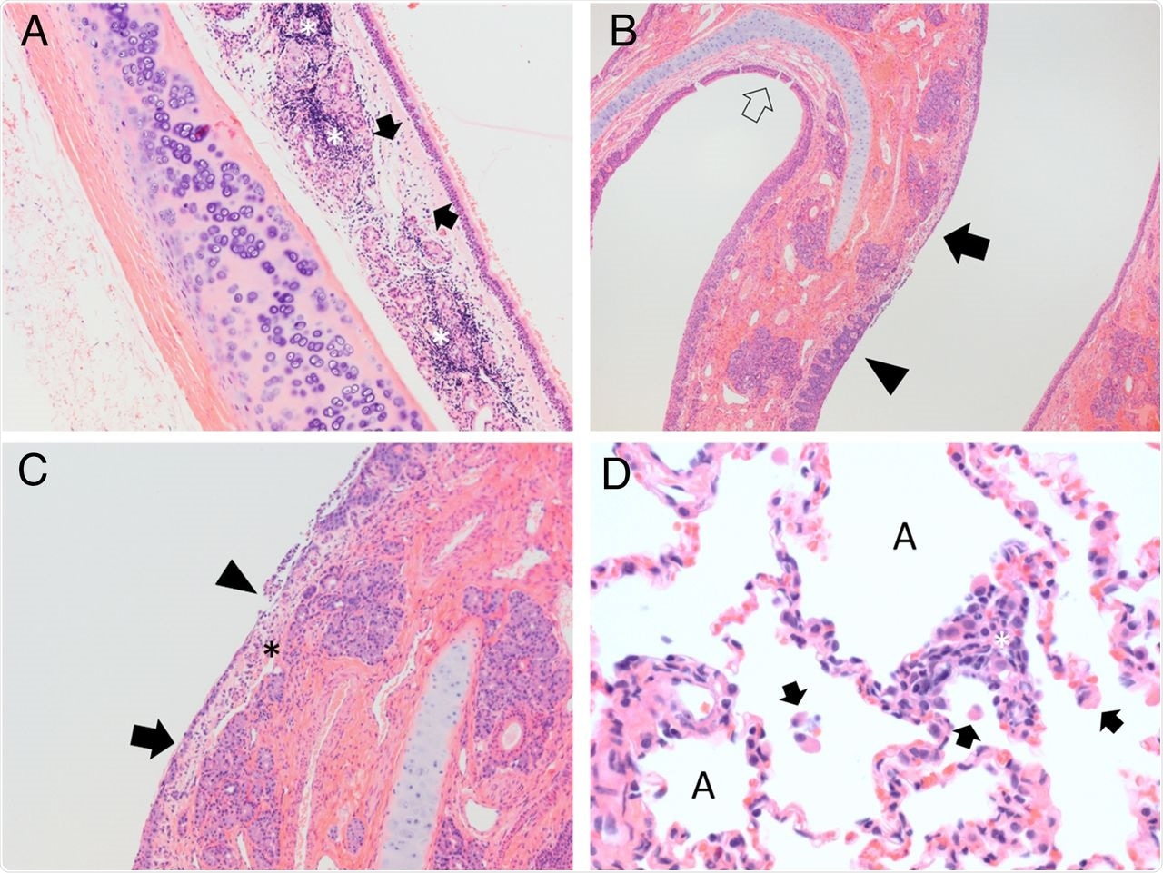 """SARS-CoV-2 exposure results in acute upper respiratory inflammation and mild lung infiltrates during later courses of infection. (A) Cat 4, cohort 2, trachea 5 DPI. The submucosa is expanded by edema (arrows) and abundant lymphocytic inflammatory infiltrates (asterisks) which dissect and disrupt submucosal glands. H&E stain, 100× magnification. (B) Cat 5, cohort 2, nasal turbinates, 5 DPI. Normal thickness respiratory mucosa is present in the section (open arrow). Nasal respiratory epithelium ranges from hyperplastic (filled black arrow) to ulcerated (arrowhead). The submucosa in regions of ulceration is edematous and infiltrated by scattered neutrophils and mononuclear cells. H&E stain, 40× magnification. (C) Cat 5, cohort 2, nasal turbinates, 5 DPI. Nasal respiratory epithelium ranges from attenuated (arrow) to ulcerated (arrowhead) with overlying remnant cellular debris. The submucosa (asterisk) in regions of ulceration is edematous and infiltrated by scattered neutrophils and mononuclear cells. H&E stain, 100× magnification. (D) Cat 1, cohort 1, lung, 42 DPI. Alveolar spaces (""""A"""") contain scattered mononuclear cells (arrows). The alveolar wall is expanded by mixtures of mononuclear cells and occasional neutrophils (asterisk). H&E stain, 400× magnification."""