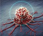 Novel microfluidic approach to fight cancer could greatly benefit patients