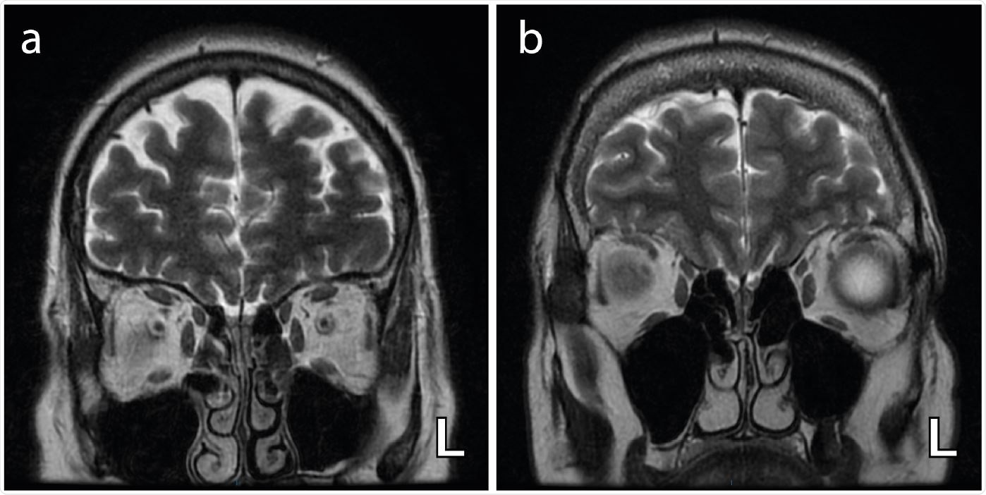 Axial T2-weighted coronal images demonstrating bilateral and complete obliteration of the olfactory clefts (a) with no associated olfactory bulb asymmetry and (b) with asymmetry of the olfactory bulbs (left (L) bulb relatively enlarged) .