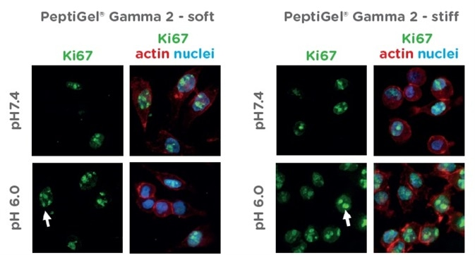 Characterization of Pancreatic Cancer Cells Response to Peptigels that Mimic Healthy and Tumour Tissue Properties