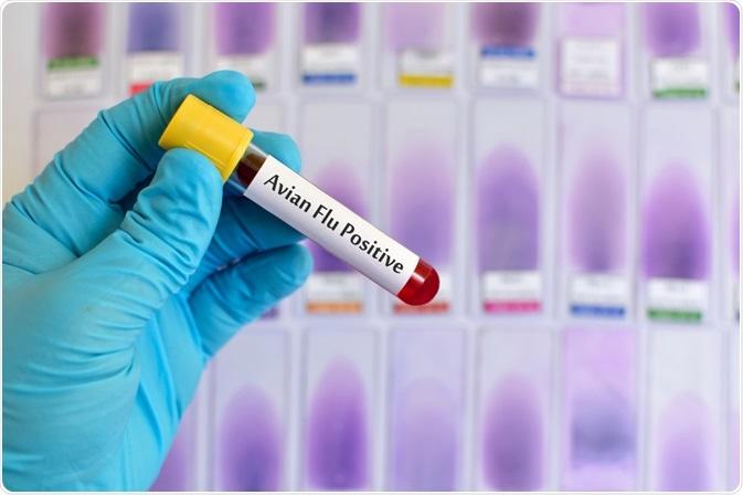 Avian Flu Test