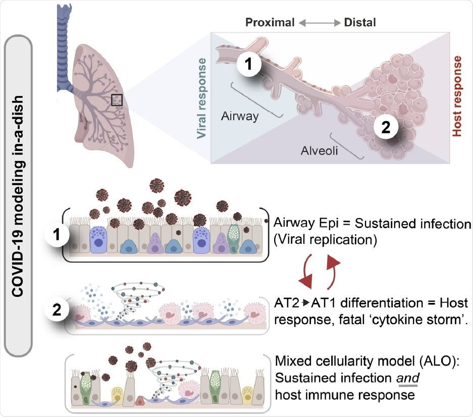 An integrated stem cell-based disease modeling and computational approach demonstrate how both proximal airway epithelium is critical for SARS-CoV-2 infectivity, but distal differentiation of alveolar pneumocytes is critical for simulating the overzealous host response in fatal COVID-19.