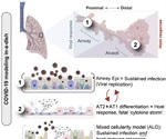 Adult stem cell-based lung organoid models emulate host immune response in fatal COVID-19