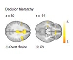 Overemphasizing the ending may trigger poor decision-making, shows research