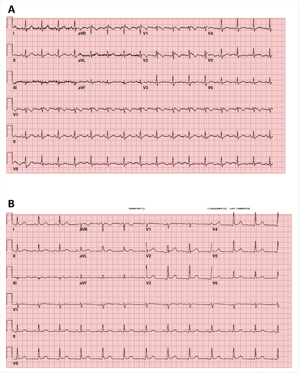 35 year old female patient without significant medical history presented with a fever of 103.1 F. A. The patient's initial 12-lead electrocardiogram in the emergency department. B. The patient's repeat 12-lead electrocardiogram with resolution of fever.