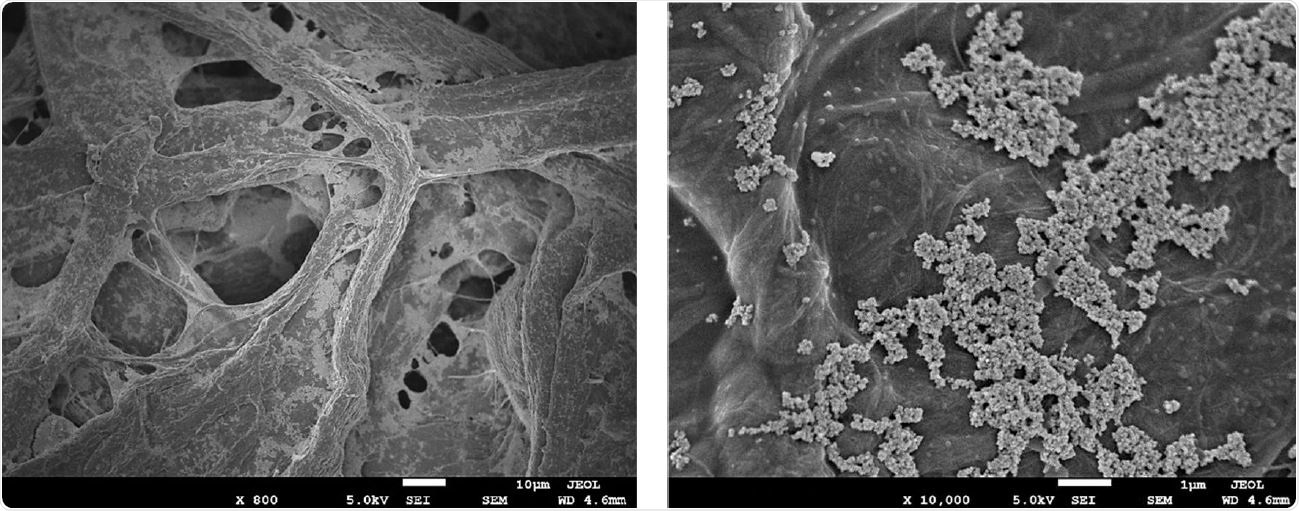 High magnification scanning electron microscopy images of aCu on 45/55 cellulose/polyester fabric. (A) fibers of the cellulose/polyester fabric coated with aCu. (B) 10,000x magnification of aCu on fabric, showing copper agglomerates in the 3-7 micrometer range.