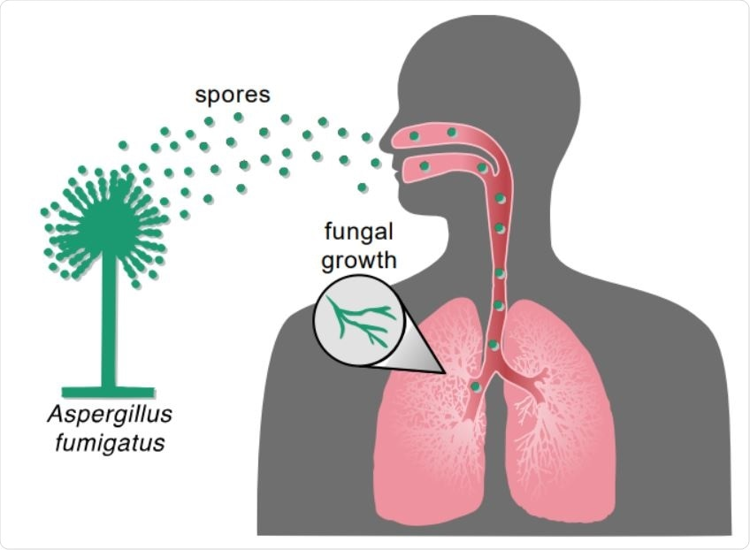 Inhalation of Aspergillus spores can result in fungal infection. Inhalation of Aspergillus spores from the environment can travel to the lung and then grow vegetatively and spread to other parts of the body.