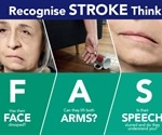 New stroke ambulance in New South Wales could save many lives
