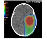 Researchers assess the risk of proton therapy for children with brain tumors
