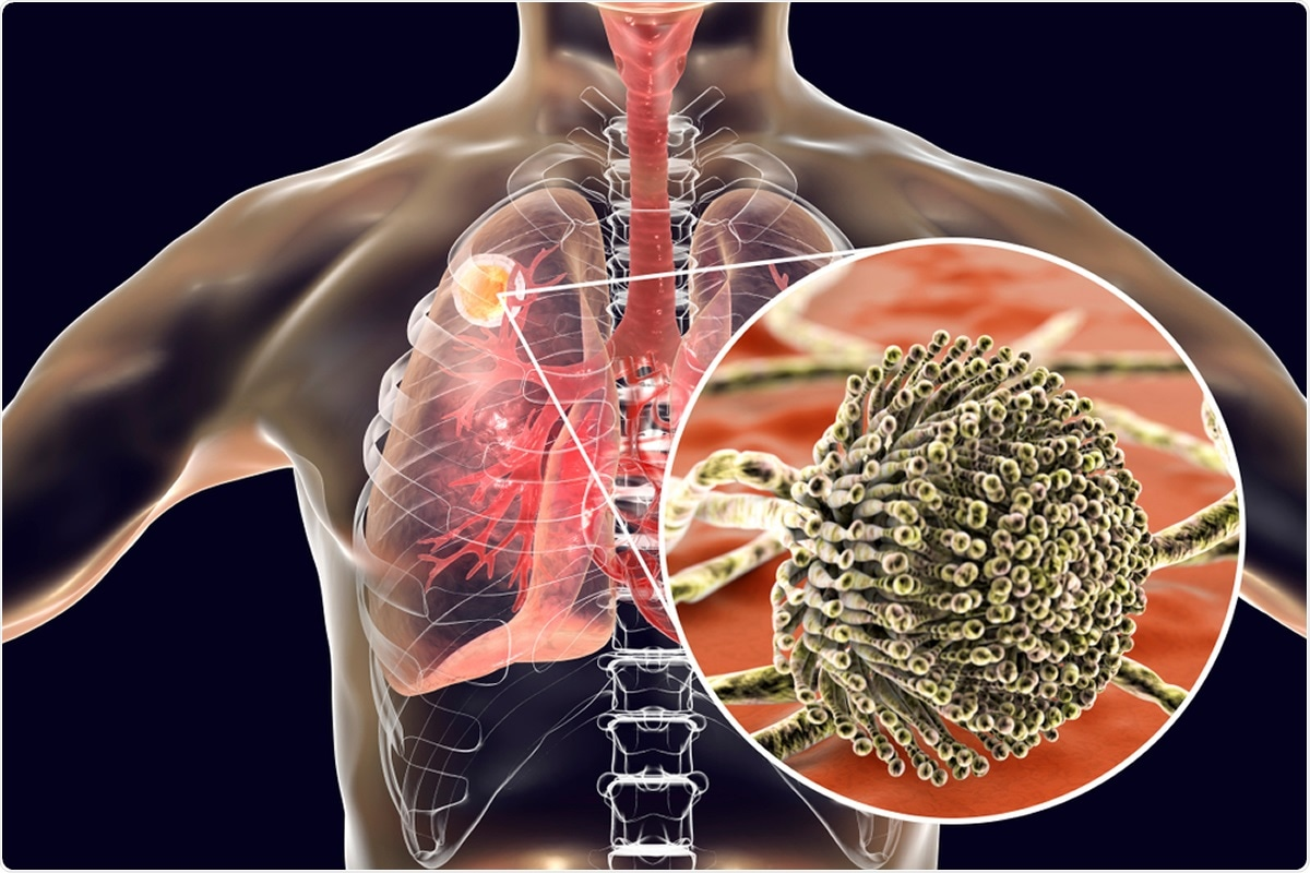 Study: Genomic and phenotypic analysis of COVID-19-associated pulmonary aspergillosis isolates of Aspergillus fumigatus. Image Credit Kateryna Kon / Shutterstock