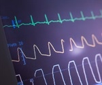 ECG abnormalities can predict COVID-19 mortality