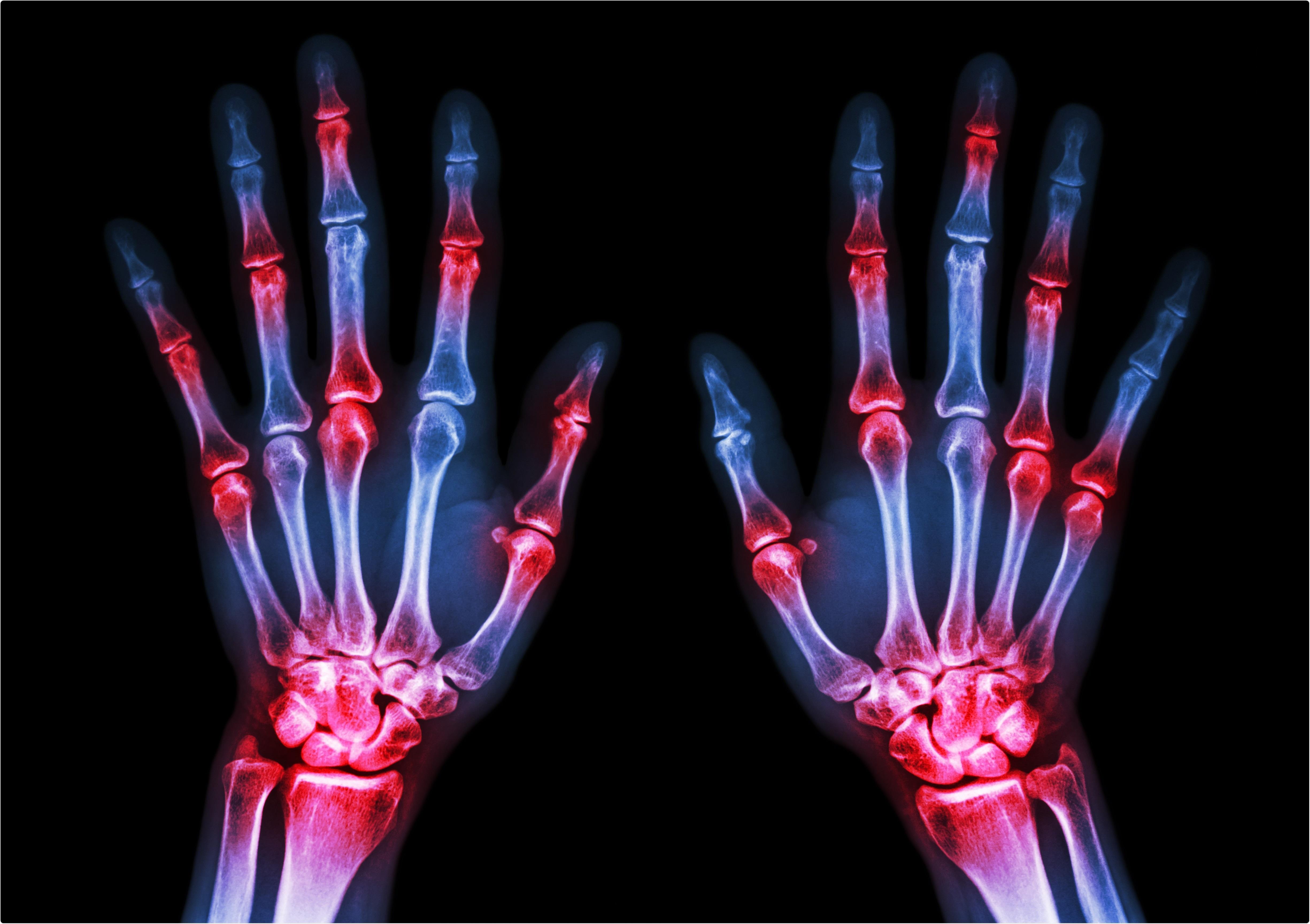Étude : Goutte, arthrite rhumatoïde et le risque de décès de COVID-19. Crédit d