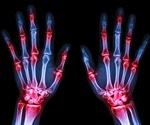 Rheumatoid arthritis may increase risk of dying from COVID-19