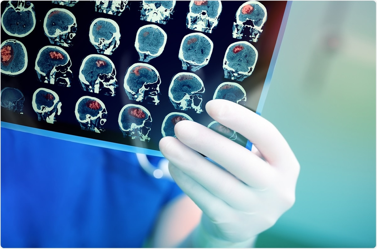 Study: Brd4-bound enhancers drive cell intrinsic sex differences in glioblastoma. Image Credit: sfam_photo / Shutterstock