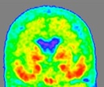 New biomarker of Alzheimer's may lead to enhanced diagnostic methods