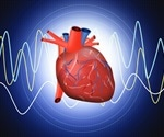 Researchers identify new biomarkers associated with incident heart failure