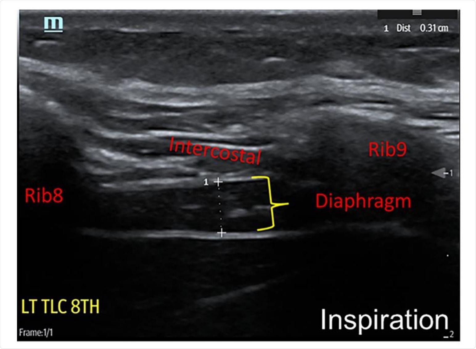 Technique for neuromuscular ultrasound examination of hemi-diaphragm