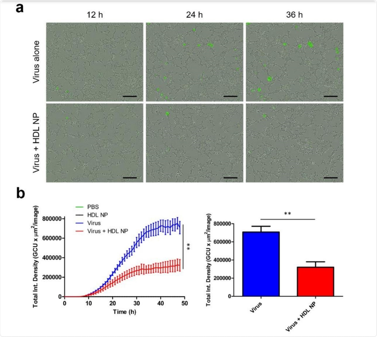 HDL NP treatment inhibits infection of SARS-CoV-2 pseudovirus in HEK293 (ACE2) cells.