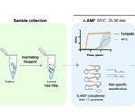 Rapid no-frills detection of SARS-CoV-2 in saliva with LAMP-Cas13