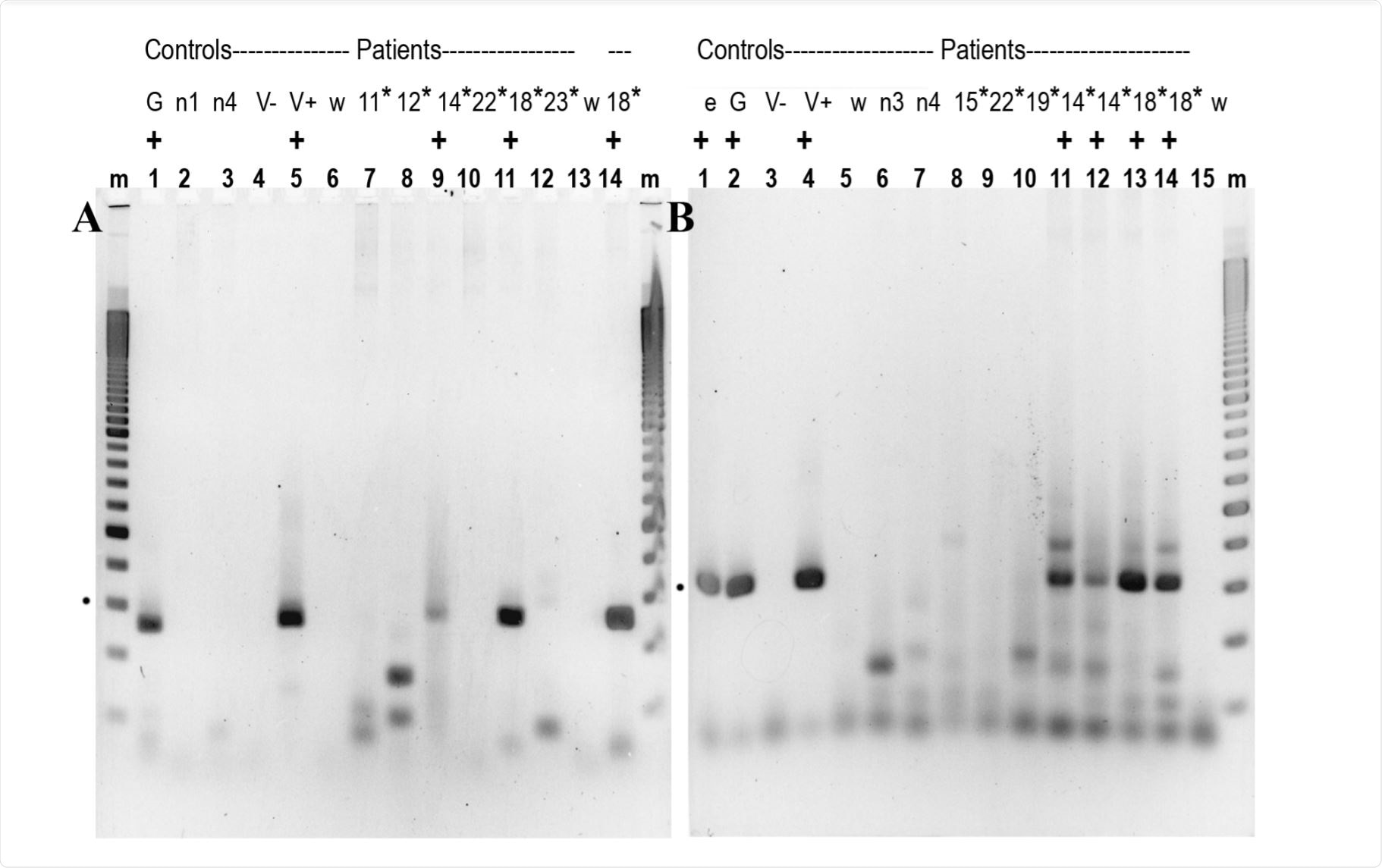 A 2.5% agarose gel showing RT/qPCR products
