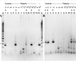 Detecting SARS-CoV-2 sequences in blood monocytes