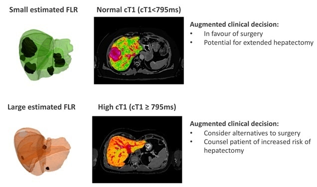 Non-invasive MRI technology helps improve surgical decision-making in liver cancer care