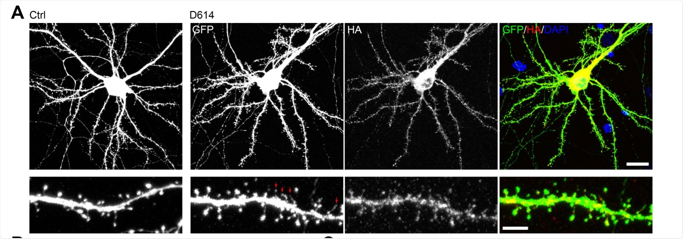 Overexpression of SARS2 spike protein alters the density and morphology of dendritic spines of cultured neurons. (