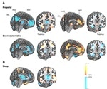 Changes in consciousness linked to the same brain network for sleep and anesthesia
