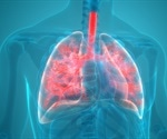 Preventing Ventilator-Associated Pneumonia with NMR