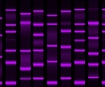 An Overview of Protein Quantification Methods
