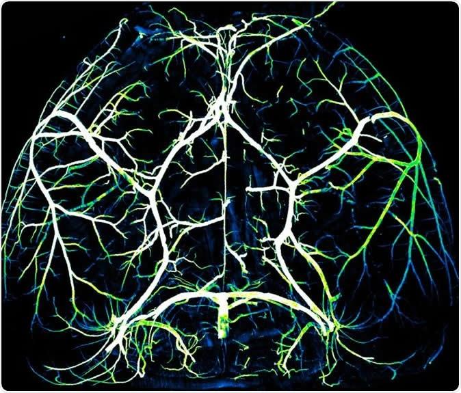 Arteries in the brain. Image Credit: Gu Lab/Harvard Medical School