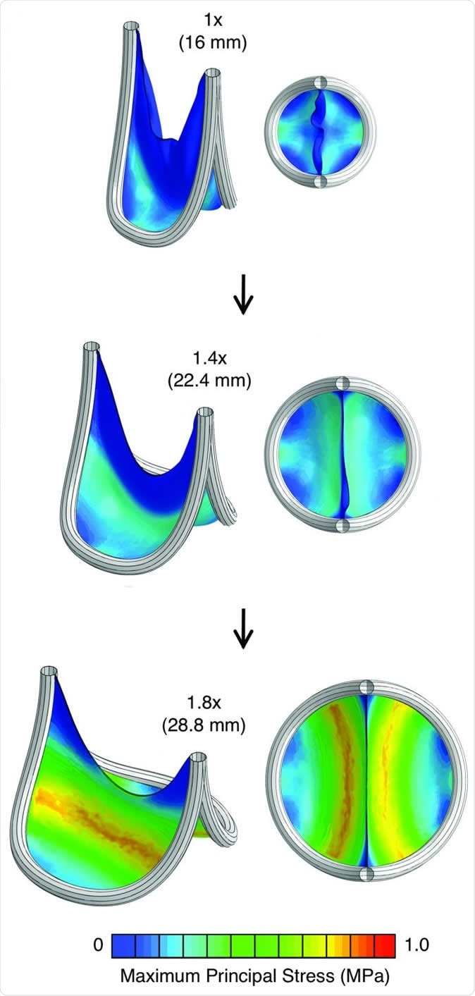 The scientists used computational modeling to predict how their valve replacement expanded to deal with the stress of blood flow. This material relates to a paper that appeared in the Feb. 19, 2020, issue of Science Translational Medicine, published by AAAS. The paper, by S.C. Hofferberth at Boston Children