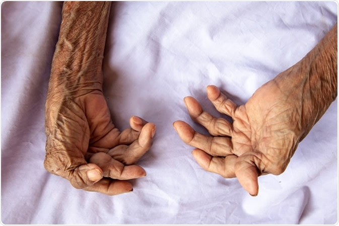 The hands of a woman with rheumatoid arthritis. Image Credit: Witsawat. S / Shutterstock