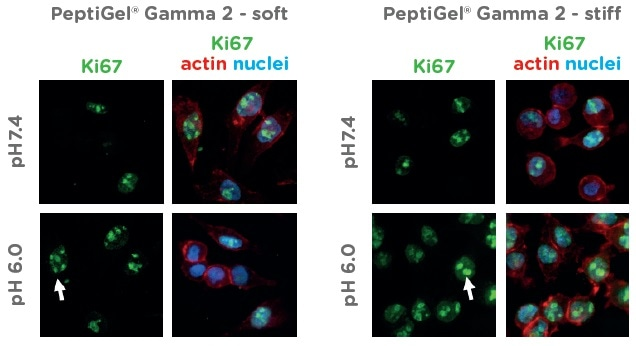 Peptigel Hydrogels Mimic Healthy and Tumor Tissue Properties