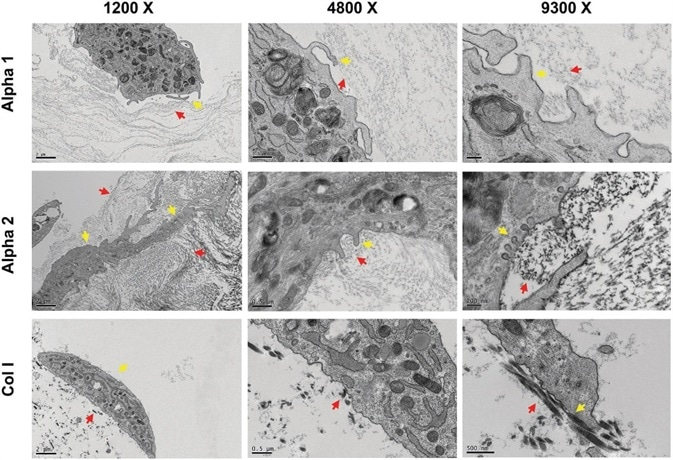 hdASC closely interact with Alpha 1 and Alpha 2 nanofibers. Transmission electron  micrograph showed that hdASC (yellow arrows) are actively interacting with the SAPs nanofibers (red arrows) with cells extending processes within the hydrogel structures. At higher magnification (9300× , right panels) it was possible to identify caveolae-like structures, which were not present in control cultures of hdASC on Col I gels (bottom row).