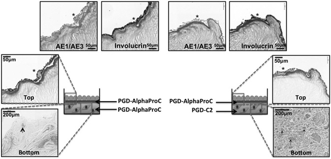 Histological analysis of 3D co-culture composite systems, cultured up to day 14 at air–liquid interface. Schematic of the two co-culture systems (system 1 and system 2) with H&E staining,  AE1/AE3 multicytokeratin staining, and involucrin staining. Asterisk indicates the positive expression of specific epithelial markers (AE1/AE3 or involucrin), and the arrows are pointing to single rOSFs with surrounding collagen deposition.