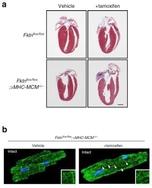 Study reveals molecular pathogenesis of muscular dystrophy-associated cardiomyopathy