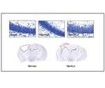 Dampening effects of overactive immune cells may serve as new treatment for TBI