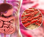 Ulcerative colitis and a missing microbe in the gut