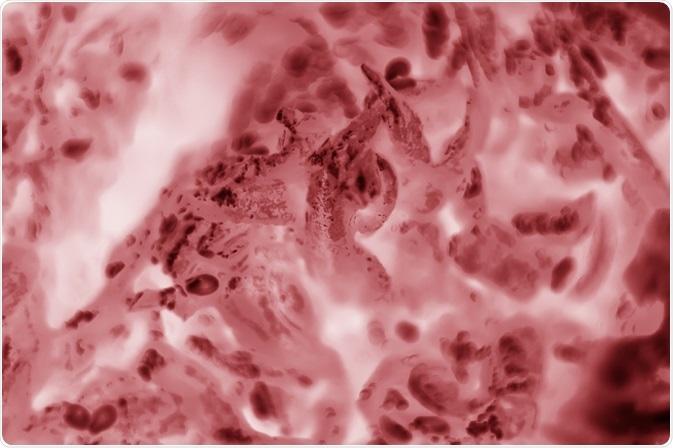 Cellules hela