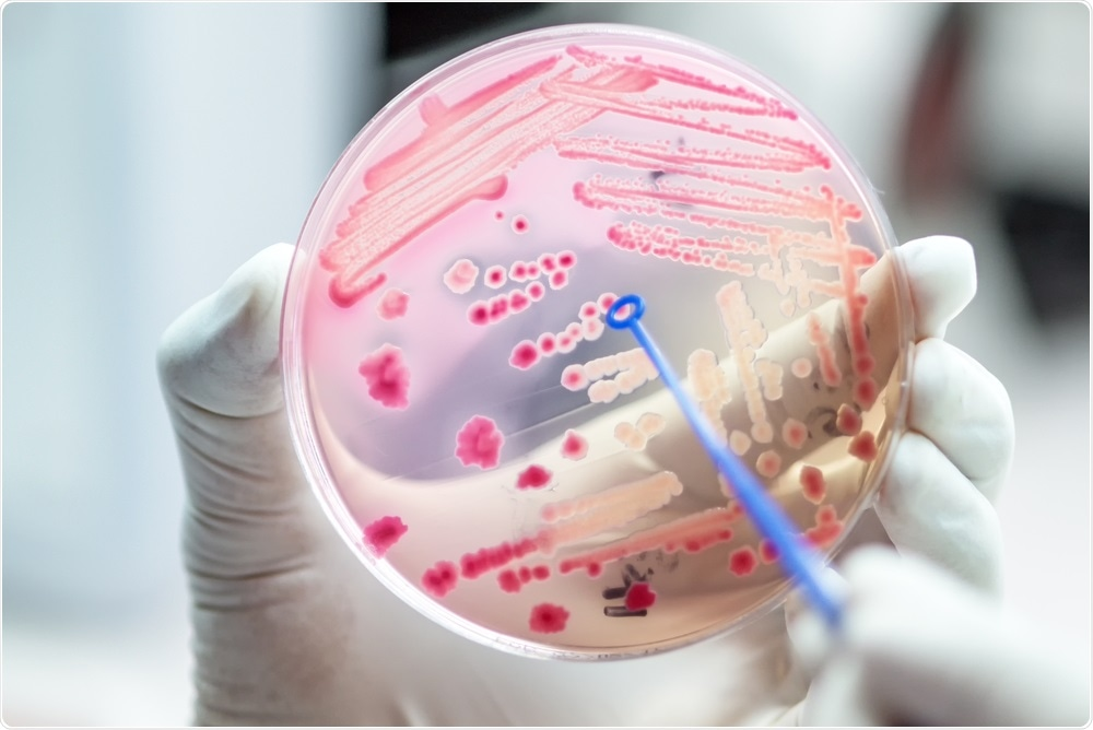 Antibiotic resistant bacteria on agar plate - diagnosis